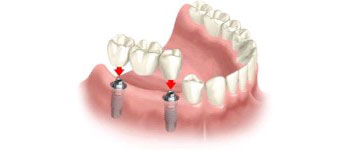 implant_retained_bridge